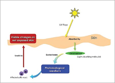 PHOTODERMATOSES1