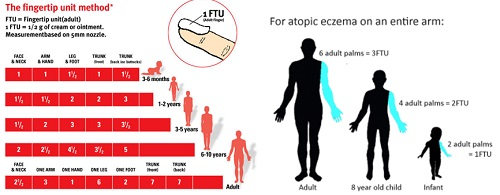 Topical steroids17
